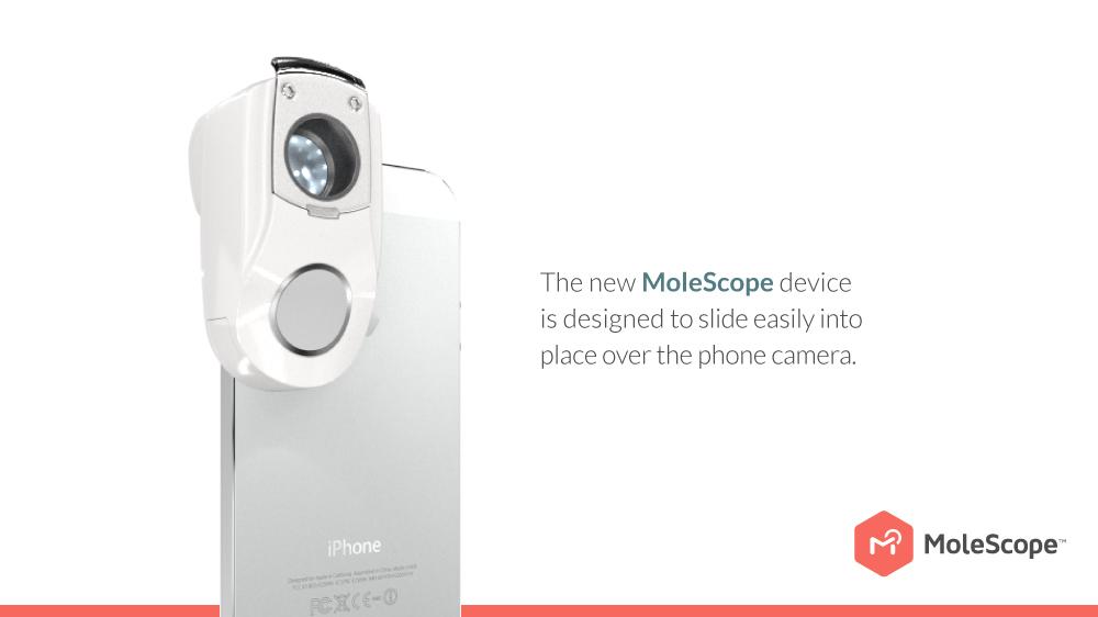 identify cancer mole cellphone application