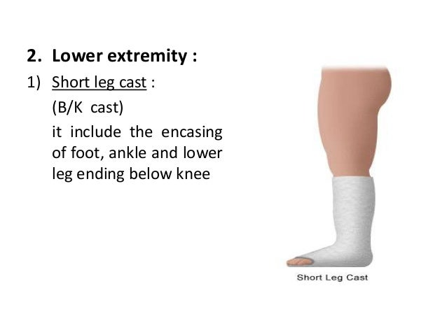 cast application and removal program